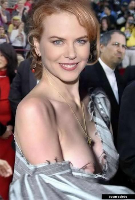 Nicole Kidman upskirt nipples